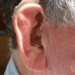 Najpowszechniejsze aparaty słuchowe w Polsce – Sprawdź które!